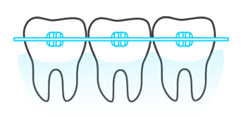 Ortodoncia dental Toledo