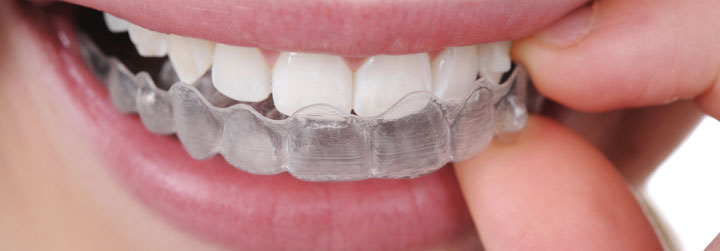Torres dental especialistas en ortodoncias en toledo